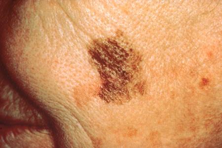 skin cancer UV radiation