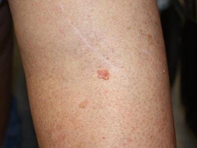 somatic mutation skin cancer